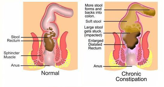 Causes of constipationThe prime most reason for constipation